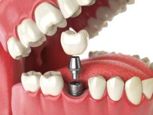 smiles plus implant