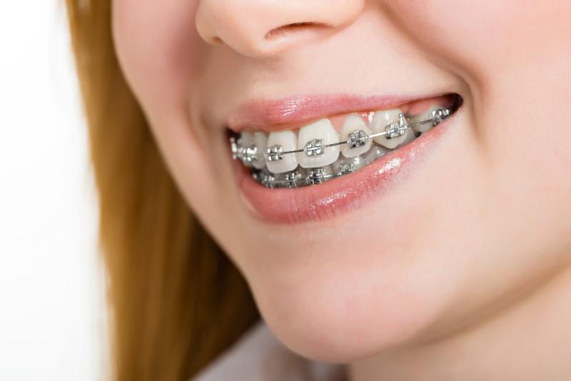 orthonontics